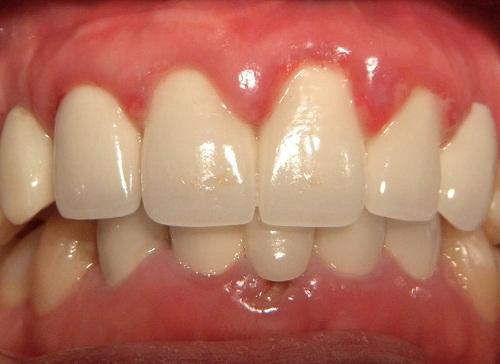 4 điều bạn cần chú ý về bệnh viêm chân răng hàm 1