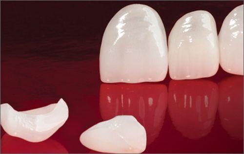 Răng bị mẻ có nên bọc sứ không thưa bác sĩ?