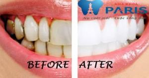 Chân răng bị vàng phải làm sao để tẩy trắng?