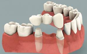 Trồng răng sứ có bị hôi miệng không hay viêm nhiễm không?