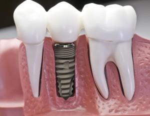 Thông tin A-Z về công nghệ trồng răng implant tốt nhất hiện nay