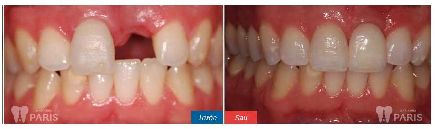 Lấy cao răng chữa viêm lợi HIỆU QUẢ đến mức nào? 5