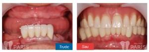 Công nghệ trồng răng Implant 4S - Cách phục hình răng tối nhất hiện nay 2