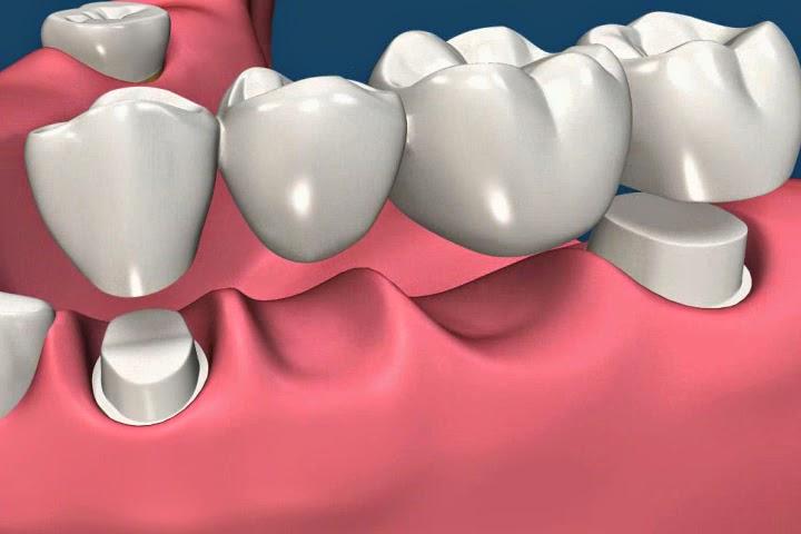 Trồng răng sứ giá bao nhiêu tiền? Update tháng 10/2016
