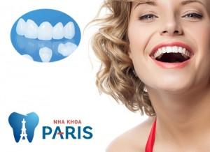 Công nghệ trồng răng Implant 4S – Cách phục hình răng tối nhất hiện nay