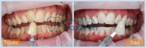 Làm sao để răng không bị vàng và cách phòng tránh