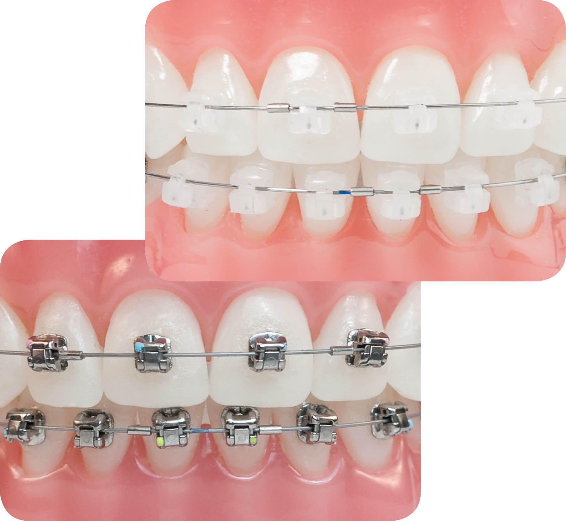 Những điều bạn cần biết về răng hô 2