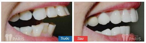 Niềng răng hô giá bao nhiêu tiền tại Hà Nội?