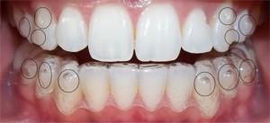 Làm răng thẩm mỹ Siêu Đẹp với CN Laser Whitening 2