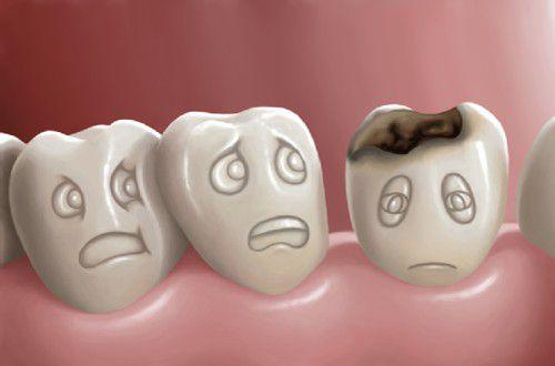 Răng dễ bị sâu do những nguyên nhân gì? 1