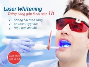 Làm răng thẩm mỹ Siêu Đẹp với CN Laser Whitening