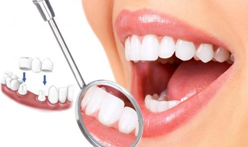 Những điều cần biết trước và sau khi bọc răng sứ thẩm mỹ