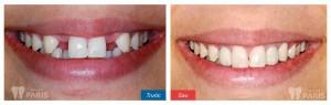 Quy trình làm răng giả cố định An Toàn Chất lượng tại Hà Nội 2