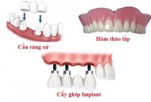 Trồng răng giả có lợi ích gì không và thực sự có cần thiết không?