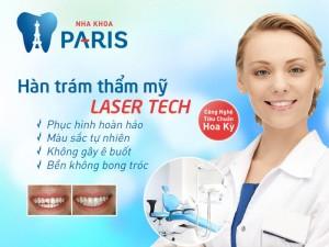 Chi phí trám răng bao nhiêu tiền là hợp lý - Đảm bảo chất lượng 2