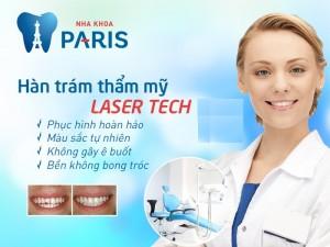 Hàn răng có ảnh hưởng gì không ? Giải đáp từ chuyên gia