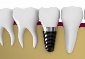 Khái niệm cấy ghép răng implant là gì? Ưu điểm Vượt trội 1