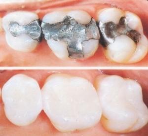 Chi phí trám răng bao nhiêu tiền là hợp lý - Đảm bảo chất lượng 1