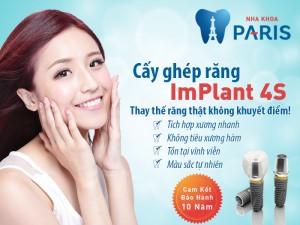Khái niệm cấy ghép răng implant là gì? Ưu điểm Vượt trội 2