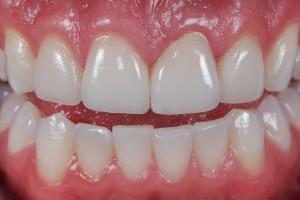 Bọc răng sứ giá bao nhiêu tiền tại Hà Nội