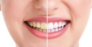 Tẩy trắng răng bằng trà xanh hiệu quả chỉ sau 3 ngày