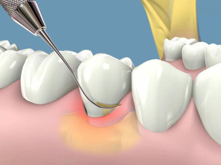Triệu chứng viêm chân răng nguy hiểm bạn nên biết 1
