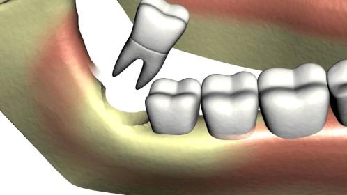 Cách nhổ răng khôn đảm bảo không đau, không biến chứngv 2