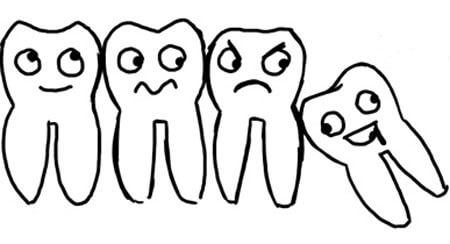 Cách nhổ răng khôn đảm bảo không đau, không biến chứng