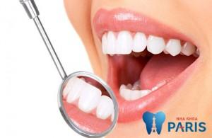 Chi phí hàn răng có đắt không, Cụ thể là bao nhiêu tại Hà Nội