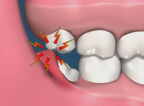 Cách chữa sưng mộng răng Nhanh chóng – An toàn – Hiệu quả