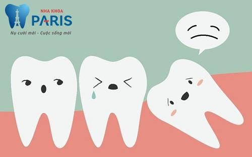 Có nên nhổ răng số 8 mọc lệch nếu răng mọc gây đau nhức 1