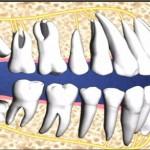 Nhổ răng số 8 giá bao nhiêu tiền? Bảng giá chi tiết 2017