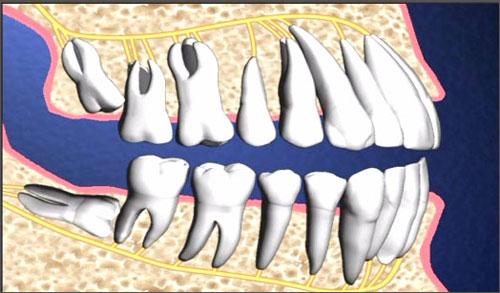 Nhổ răng số 8 đau không, sự thật có như bạn nghĩ?