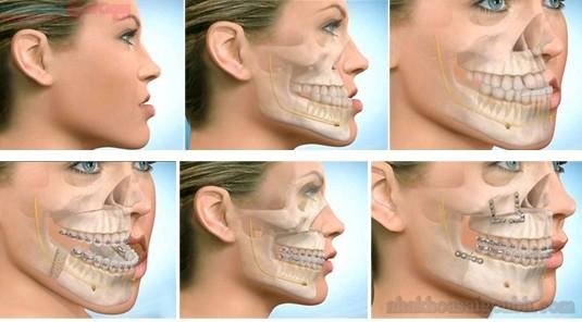 Niềng răng móm mất bao lâu là mang lại hiệu quả cao nhất?