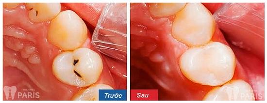 Răng vĩnh viễn bị sâu và 3 chỉ định điều trị trong nha khoa 2