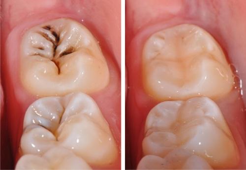 Răng vĩnh viễn bị sâu và 3 chỉ định điều trị trong nha khoa