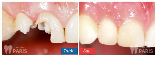 crown-restoration-before-after