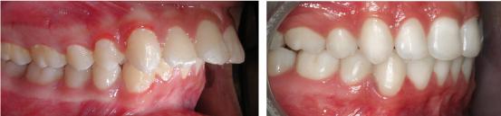Một số nguyên nhân và cách điều trị răng hô vẩu tại nhà & có sự tham gia của nha khoa