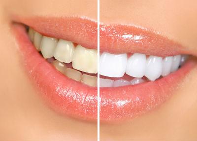 Răng ố vàng phải làm sao? Có nên tẩy trắng răng không?