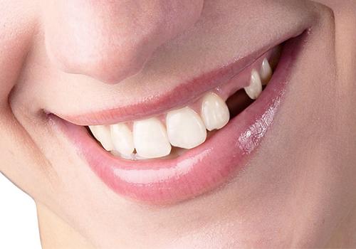 Giải đáp những điều hay thắc mắc về trồng răng thẩm mỹ