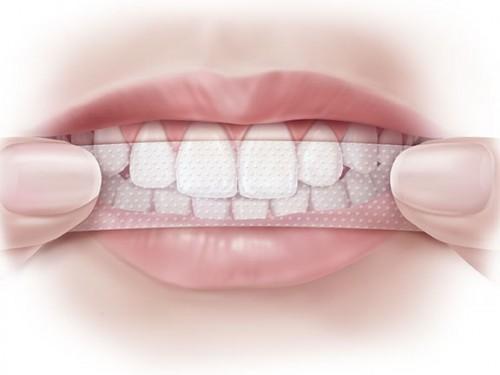 Gợi ý những cách tẩy trắng răng hiệu quả nhất 2