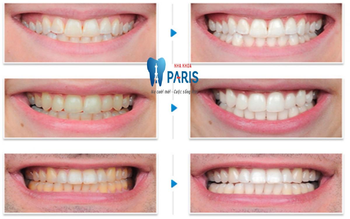 Xóa tan nỗi lo răng ngả màu với 5 cách tẩy trắng răng tại nhà hiệu quả TUYỆT ĐỐI 6