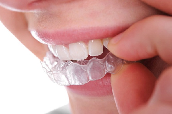 Gợi ý những cách tẩy trắng răng hiệu quả nhất 3