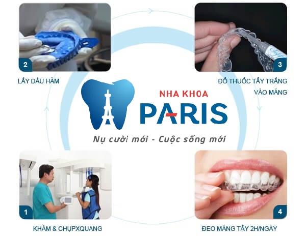Gợi ý những cách tẩy trắng răng hiệu quả nhất 4