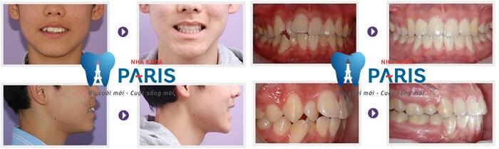 Tự tin cười xinh với niềng răng không mắc cài Invisalign 5