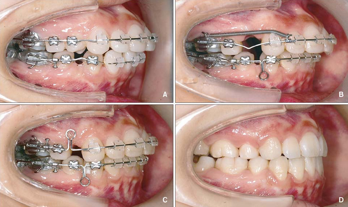 [Giải đáp] Loại bỏ hàm răng hô nhanh chóng, hiệu quả 100% 2