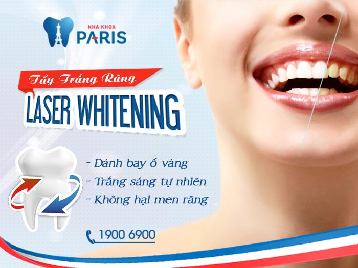 Những điều bạn cần chú ý trước và sau khi tẩy trắng răng 3