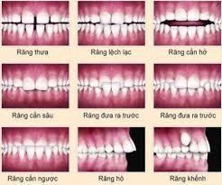 Gợi ý các cách làm đều răng hiệu quả mà không tốn kém