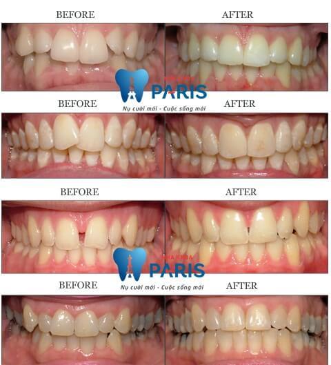 Gợi ý các cách làm đều răng hiệu quả mà không tốn kém 2