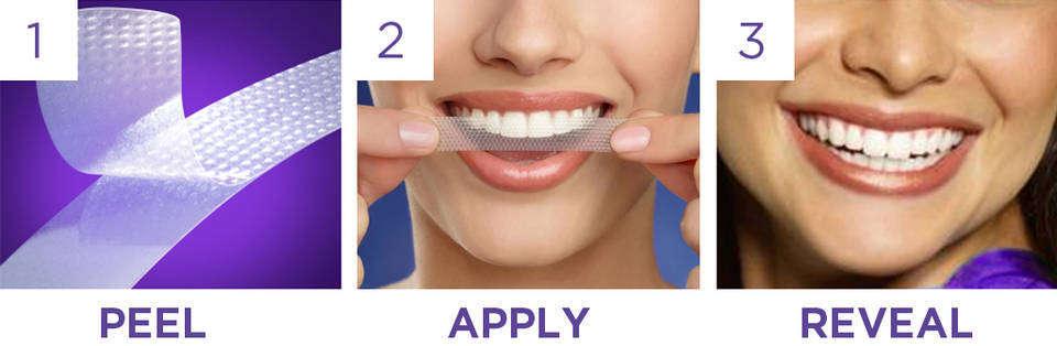 4 cách làm trắng răng nhanh chóng hiệu quả cao 3